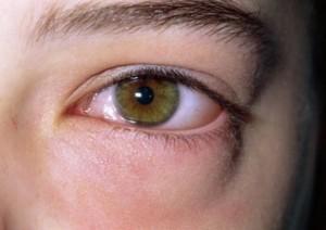 Albul ochilor- ingalbenit